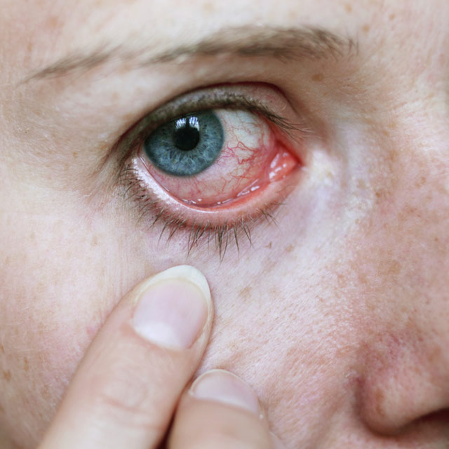 Pictures of Skin Diseases and Problems - Herpes Simplex ...