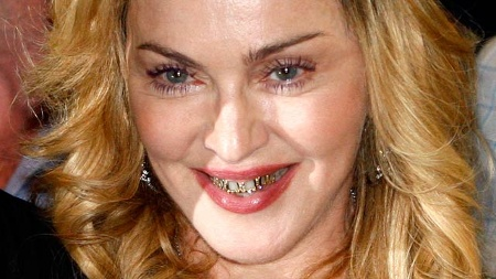 Madonna diamond grillz
