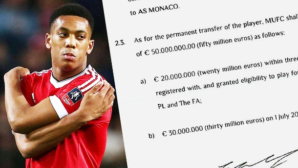 Anthony Martial: Das Transfer-Dokument von ManUnited und AS Monaco. Anthony Martial wechselte im Sommer zu Manchester United. (Quelle: imago/hrzrsn)