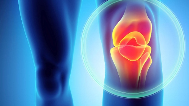 Wie man Arthrose am besten vorbeugt. Das Knie gehört zu dem von Arthrose am meisten bestroffenen Korperteilen. (Quelle: Thinkstock by Getty-Images)
