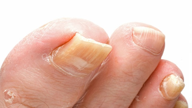 Nagelpilz: Peinliche Körperleiden verhindern. Ein verdickter und verfärbter Fußnagel weist auf Nagelpilz hin. (Quelle: Thinkstock by Getty-Images)