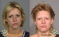 Crystal Meth (Quelle: Faces of Meth)