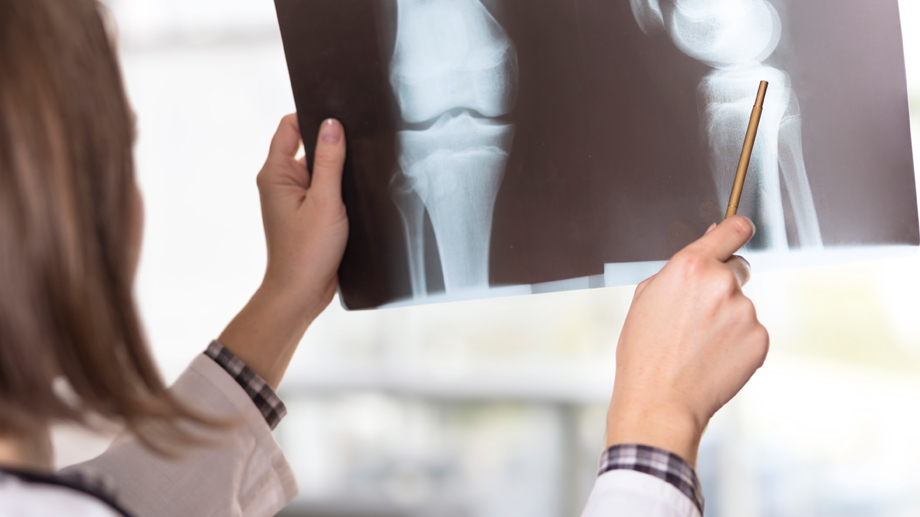 Osteoporose  (Quelle: Thinkstock by Getty-Images)