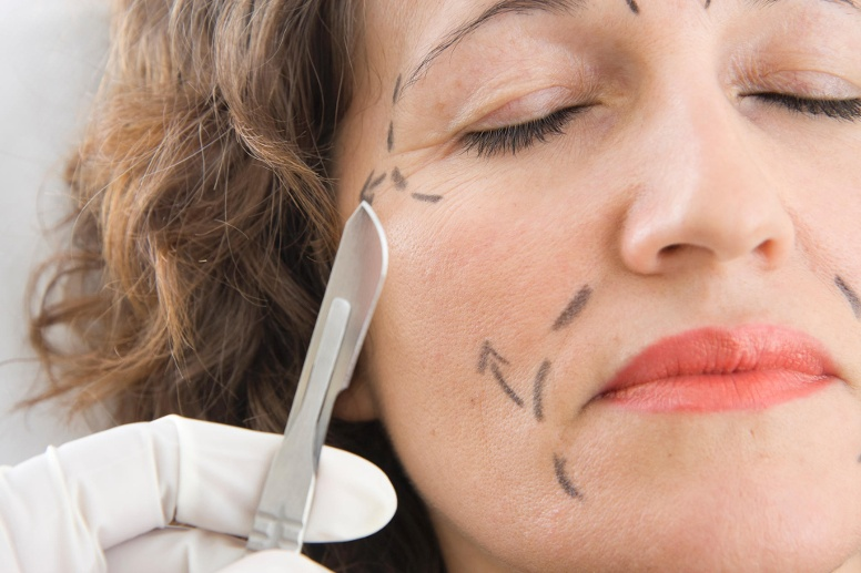 Facelifting (Quelle: Thinkstock by Getty-Images)
