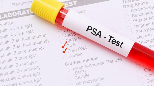Wie sicher ist der PSA-Test? (Quelle: Thinkstock by Getty-Images/jarun011)