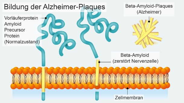 Beta amyloid is divided into a larger pioneer protein (amyloid precursor protein). The peptide is attached to other peptide fragments, thus creating deposits that affect the function of the nervous cells and ultimately destroying them. (Source: Material image: GettyImages, Editing: t-online)