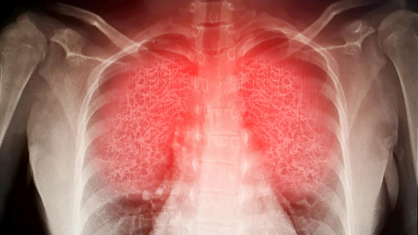 Lungs: the SARS-CoV-2 coronavirus can affect all organs.  (Icon image) (Source: Getty Images / sompong_tom)